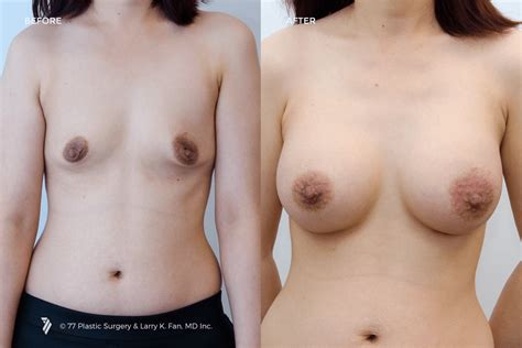 Breast lift cleveland clinic png 1305x870